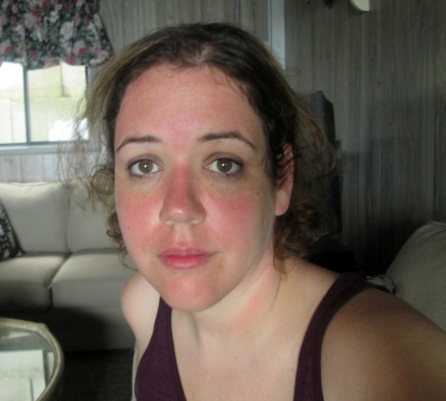 And this was the trip I learned that you could get a hideous, cancer-causing sunburn on a cloudy day in Canada!